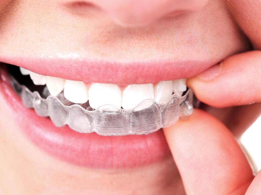 En quoi consiste l'orthodontie Invisalign ?